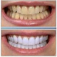 16_dientesblancos2